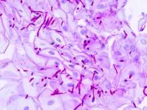 Candida albicans es un tipo común de hongo