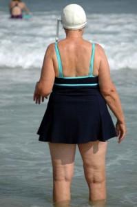 obesidad y problemas hormonales de la mujer